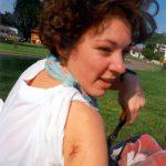 Tanja met oorlogswond op camping heenreis,Willstätt,Duitsland,Juni 1994